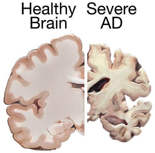 Alzheimer's and Changes in the Brain