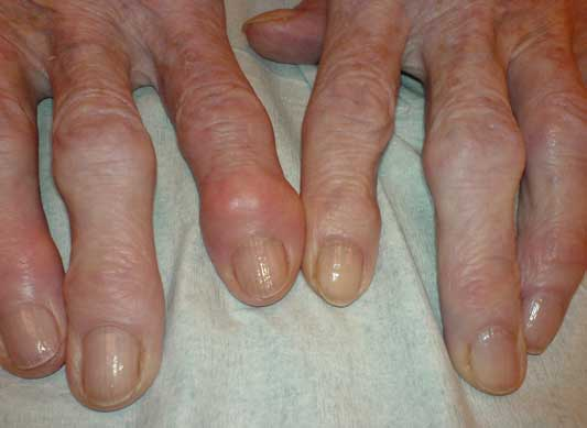 Rheumatoid Arthritis and Remission