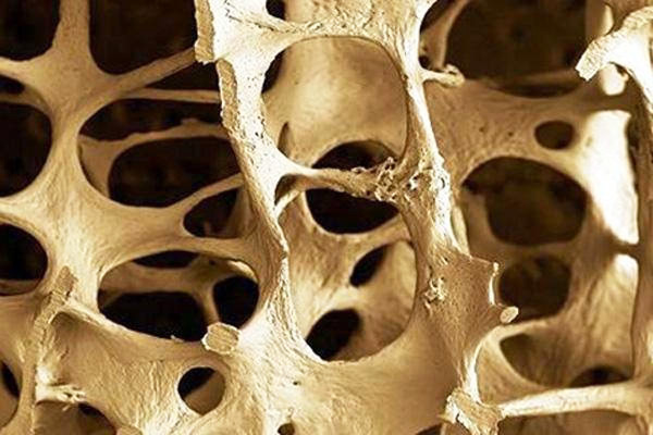 The Role Junk Food Plays in Osteoporosis