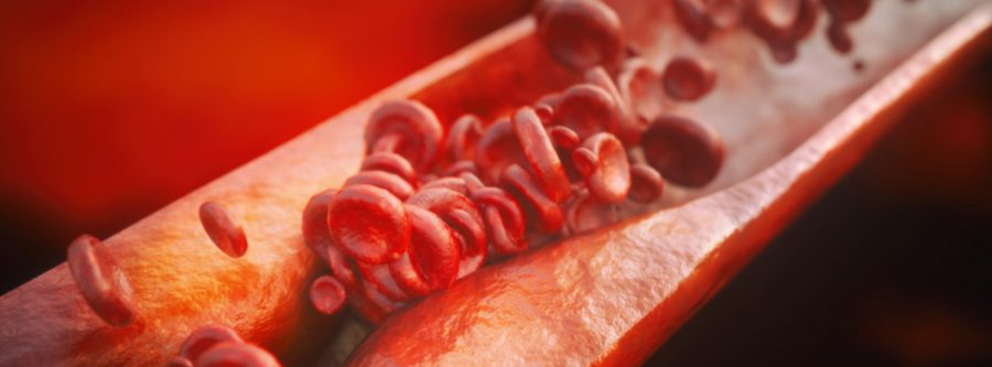 Clogged Arteries and Alzheimer's?