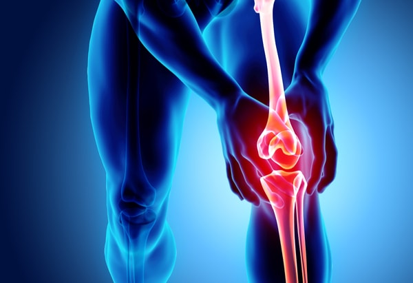 How to Treat Osteoarthritis Naturally